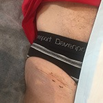 2 Week scar after bikini hip replacement