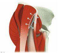 Anterior Minimally Invasive