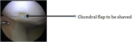 Chondroplasty