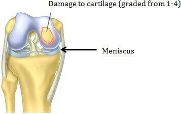 Damaged Articular Cartilage