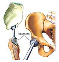 Femur (thigh Bone) and Acetabulum (Cup) is prepared – (Reaming)