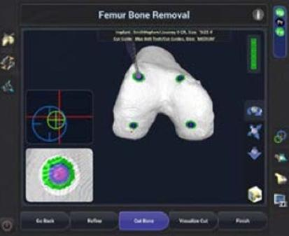 femur-bone-removal