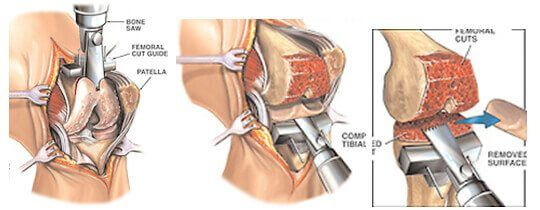 Total Knee Replacement Melbourne Total Knee